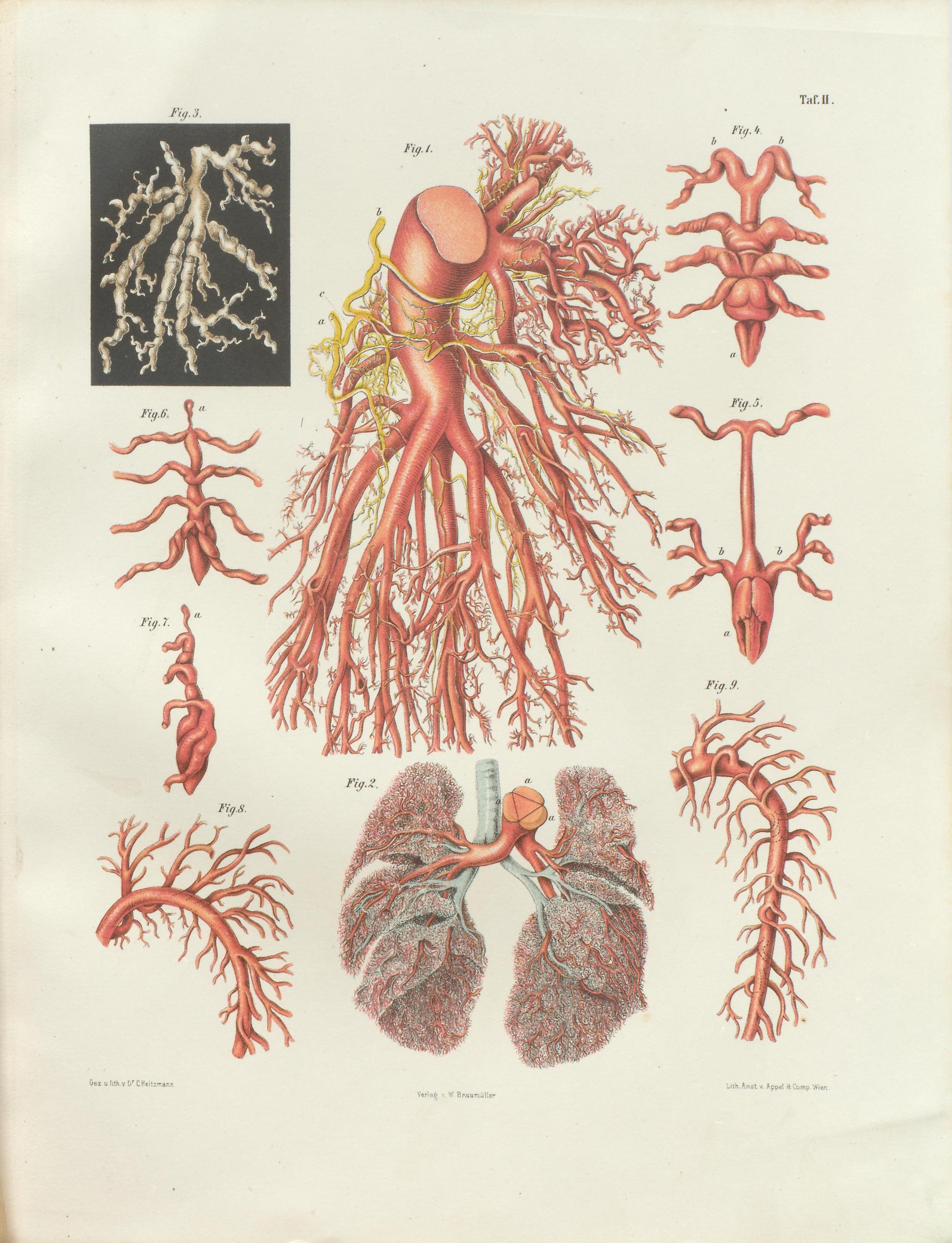 File:Hyrtl Corrosions-Anatomie tafel 002.jpg - Wikimedia Commons
