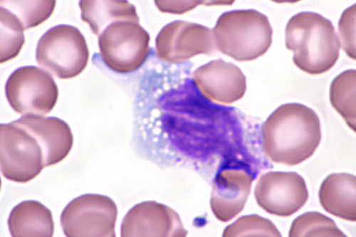 File:Mononucléose infectieuse-8.JPG - Wikimedia Commons