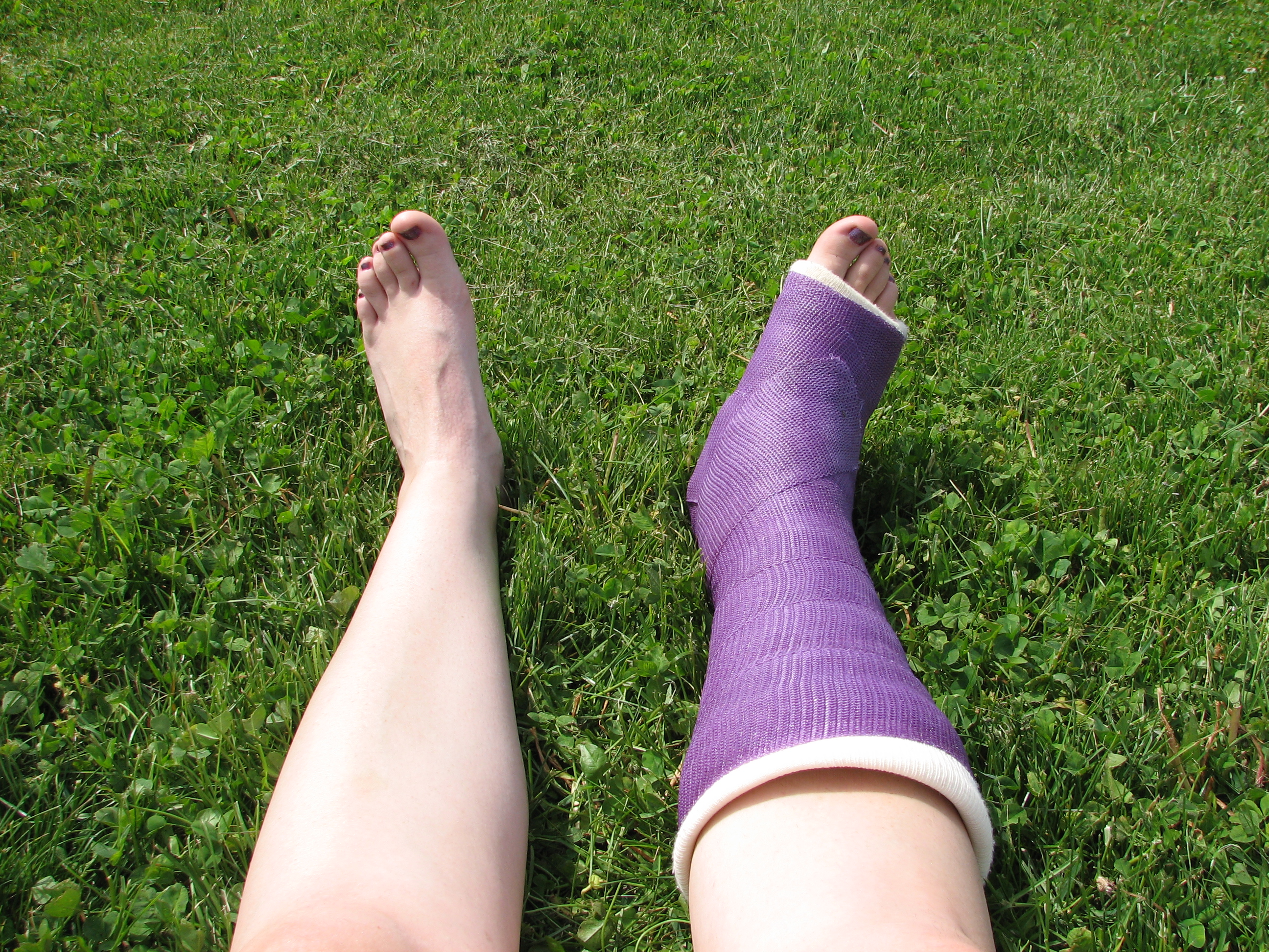 How much does it really cost to heal your broken foot?