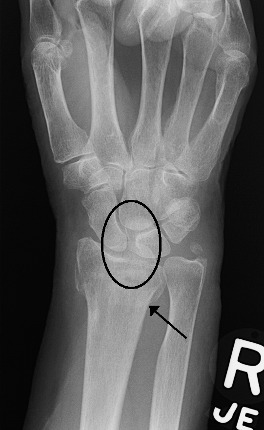 Scapholunate Ligament Wikiwand