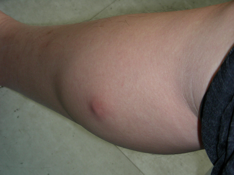Sebaceous Cyst On Leg