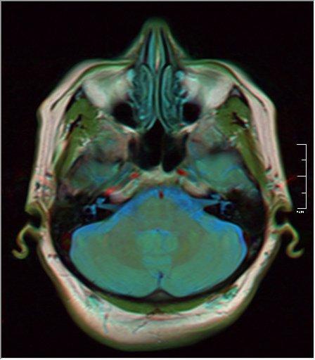 Brain MRI 0106 15.jpg