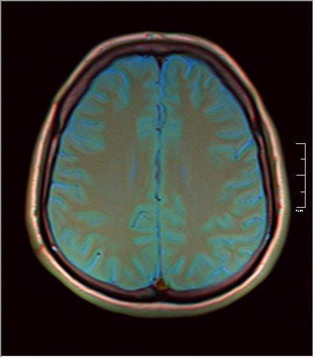 Brain MRI 0249 05.jpg