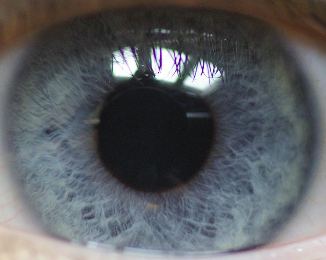 Blue Eye In Dogs Tapetum Lucidum
