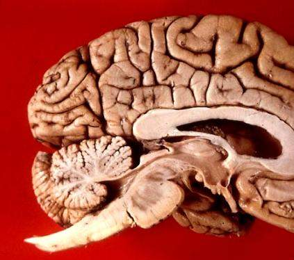 Human brain midsagittal view.JPG