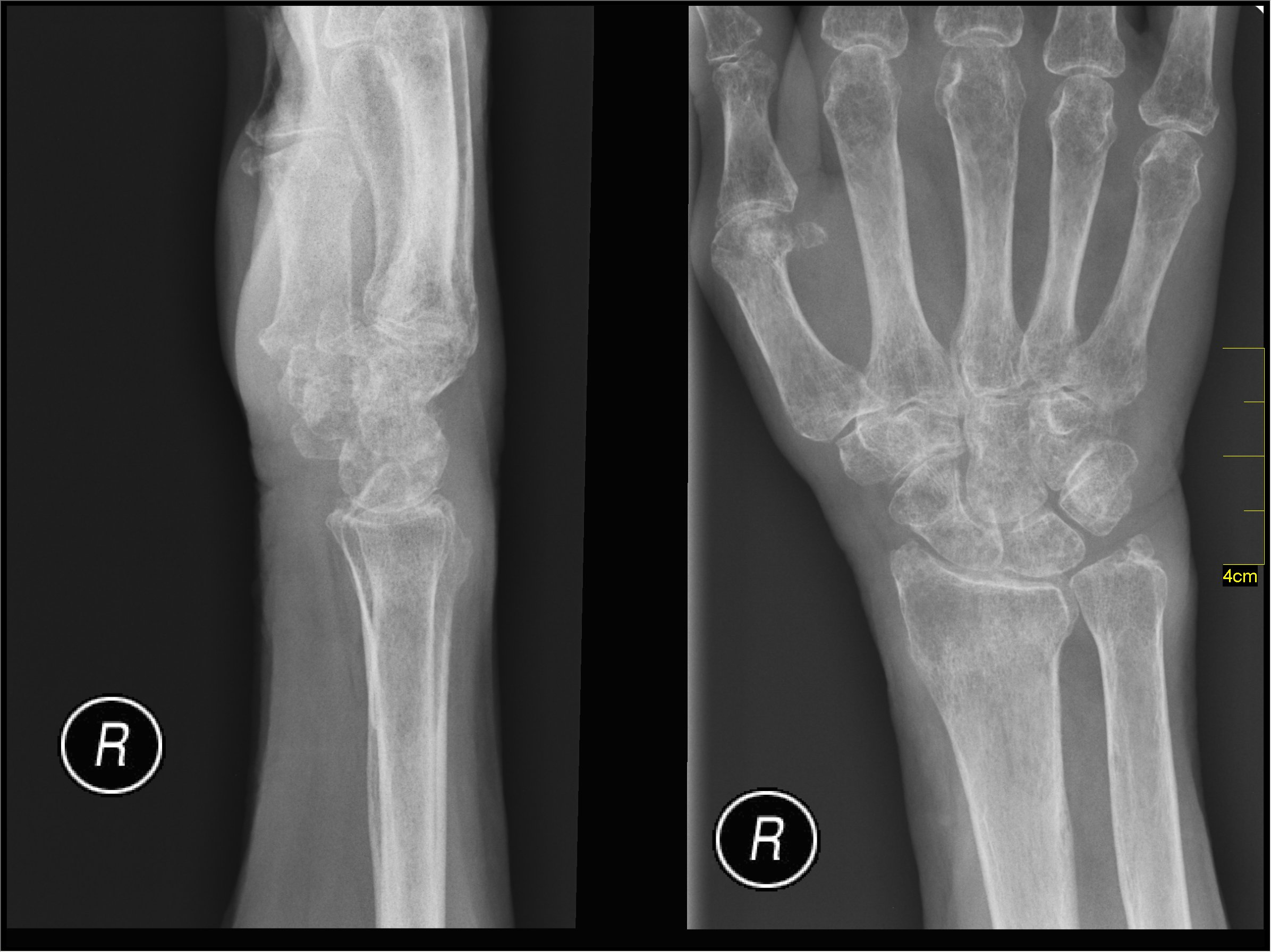 Datei:Medical X-Ray imaging BMJ02 nevit.jpg – Wikipedia