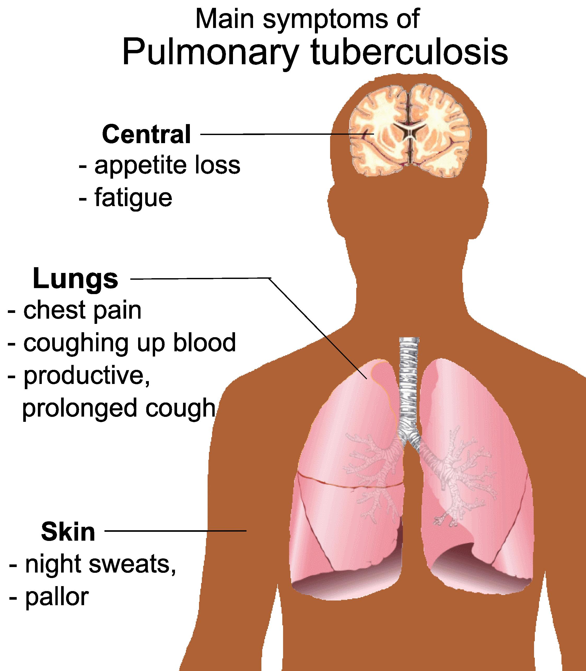Pulmonary Tuberculosis Symptoms