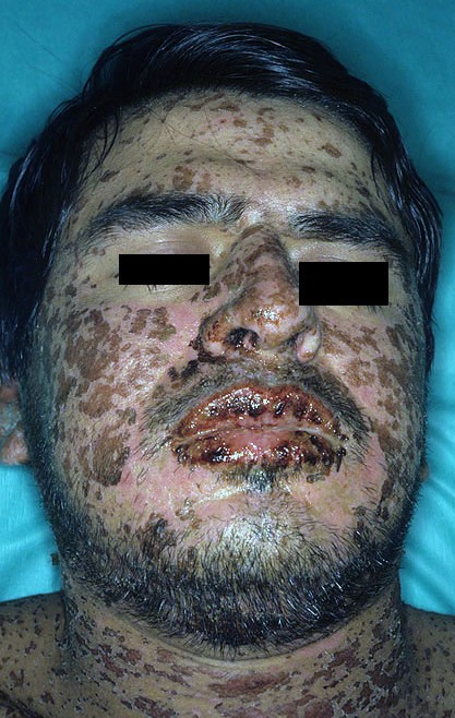 File:Stevens-johnson-syndrome.jpg - Wikipedia, the free encyclopedia
