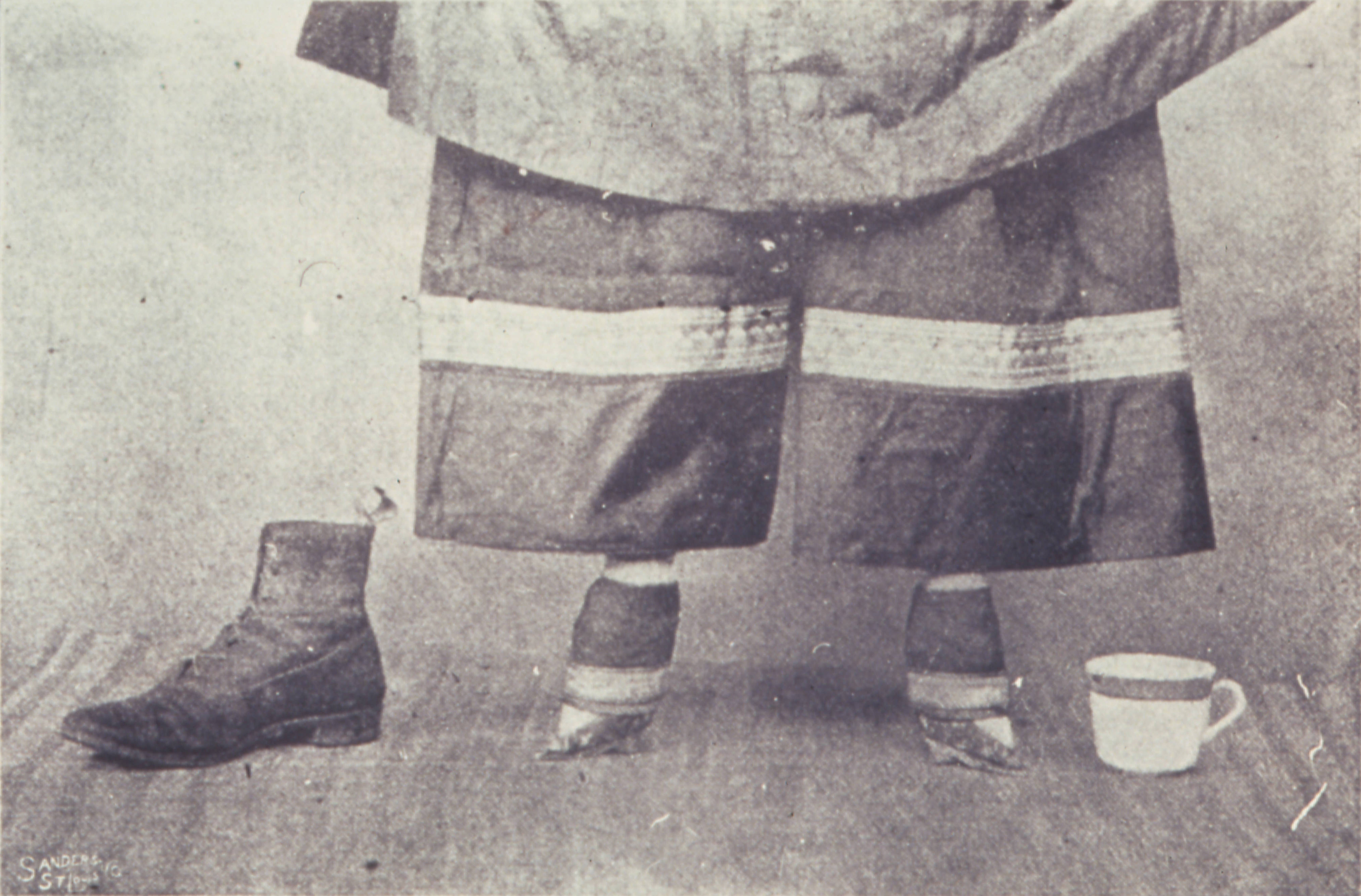 foot binding in china essay Foot binding or chanzu first became widespread during the sung dynasty of china (960-976 bc)  at first, this was limited to the elite upper classes, but it soon spread to the middle and lower classes in the manner of other fads.