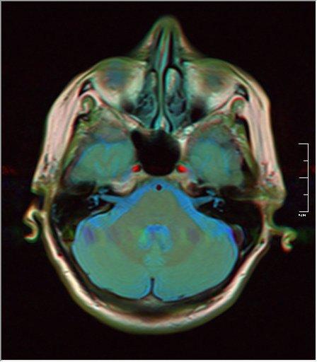 Brain MRI 0076 15.jpg