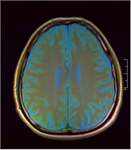 Brain MRI 293 06.png