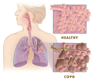 Copd versus healthy lung