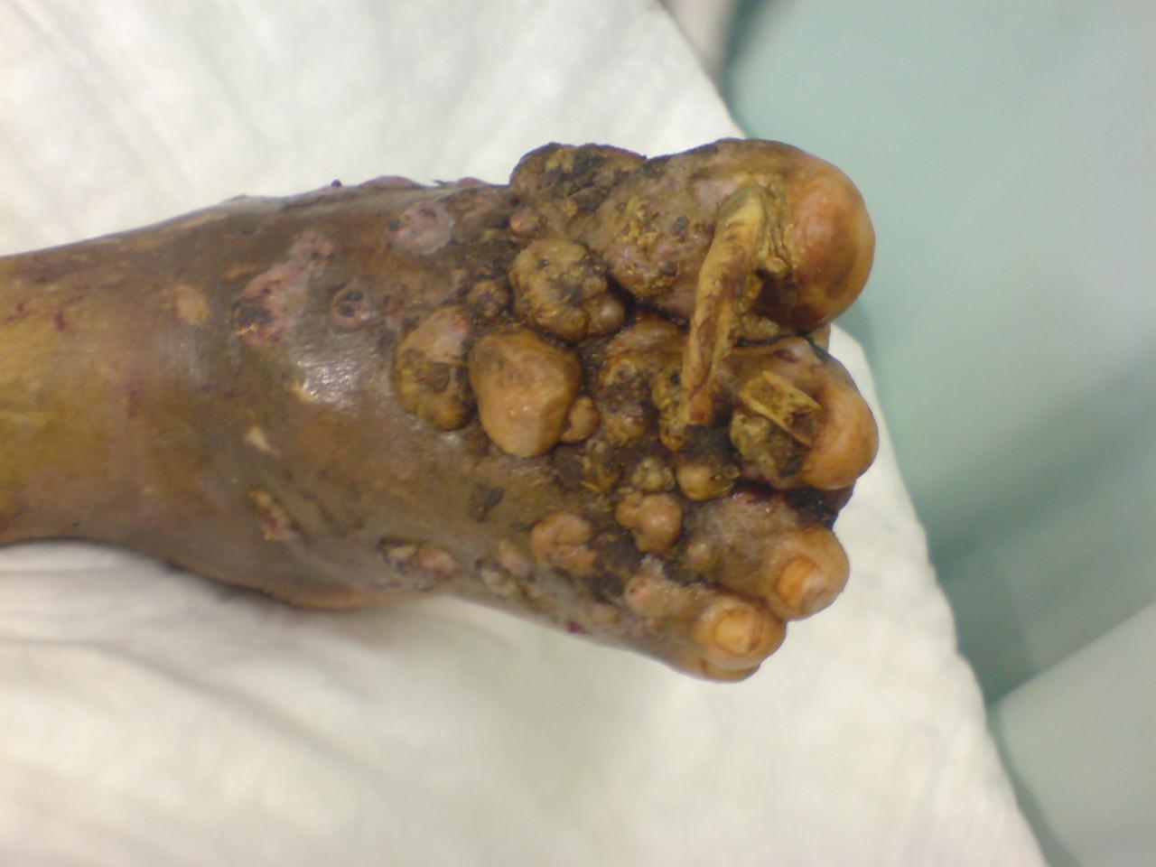 Severe Athlete's Foot