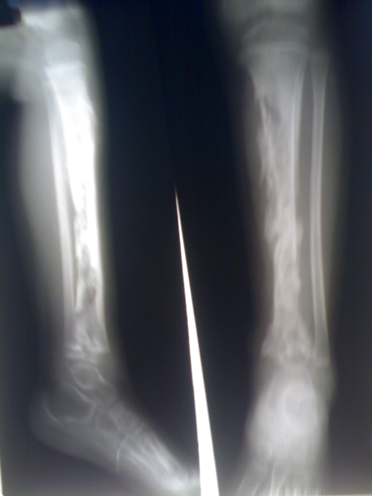 Osteomielitis - Wikipedia, la enciclopedia libre