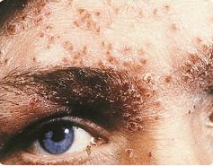 File:SOA-Herpes-genitalis-face1.jpg - Wikipedia