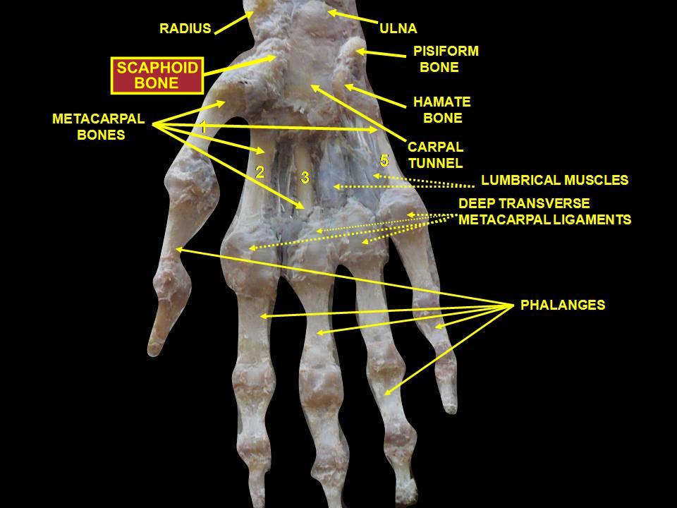 File:Slide1dsds - Scaphoid bone.png - Wikimedia Commons