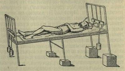Рис. 4. Вытяжение позвоночника силой привешенного груза; к голове укреплена т. н. Глиссонова петля.