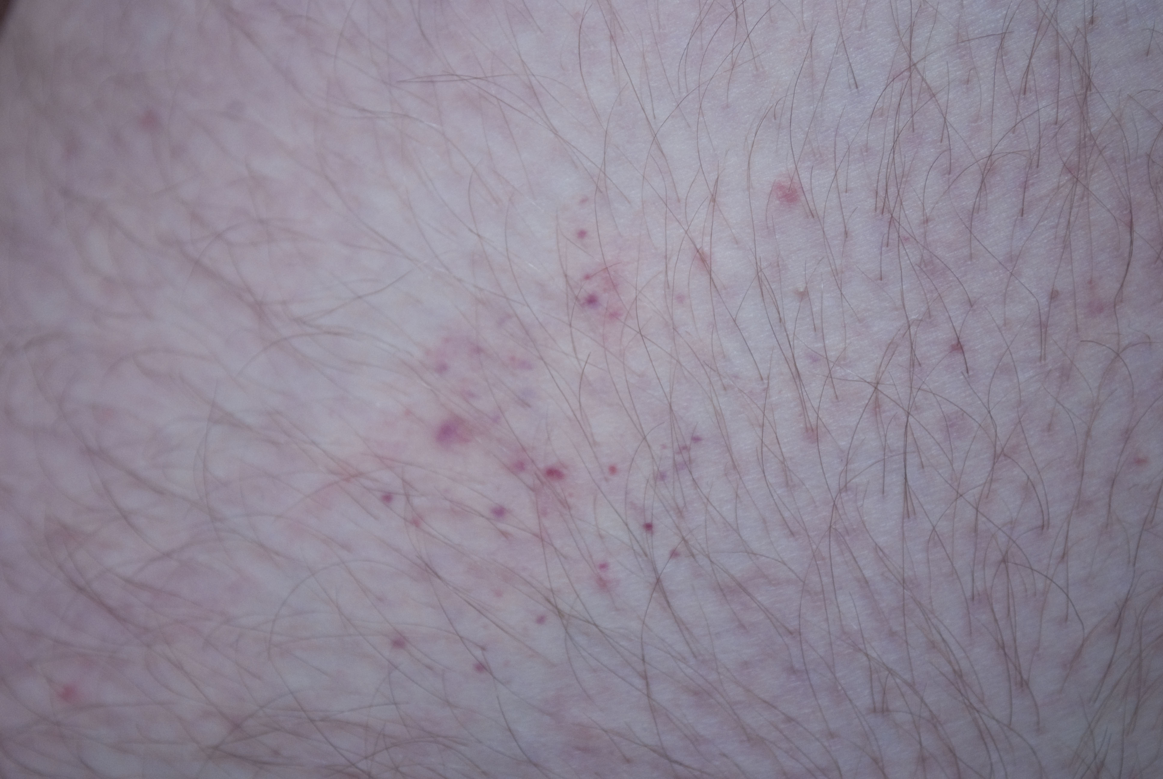 Bed Bug Bite Scars Natural Remedies