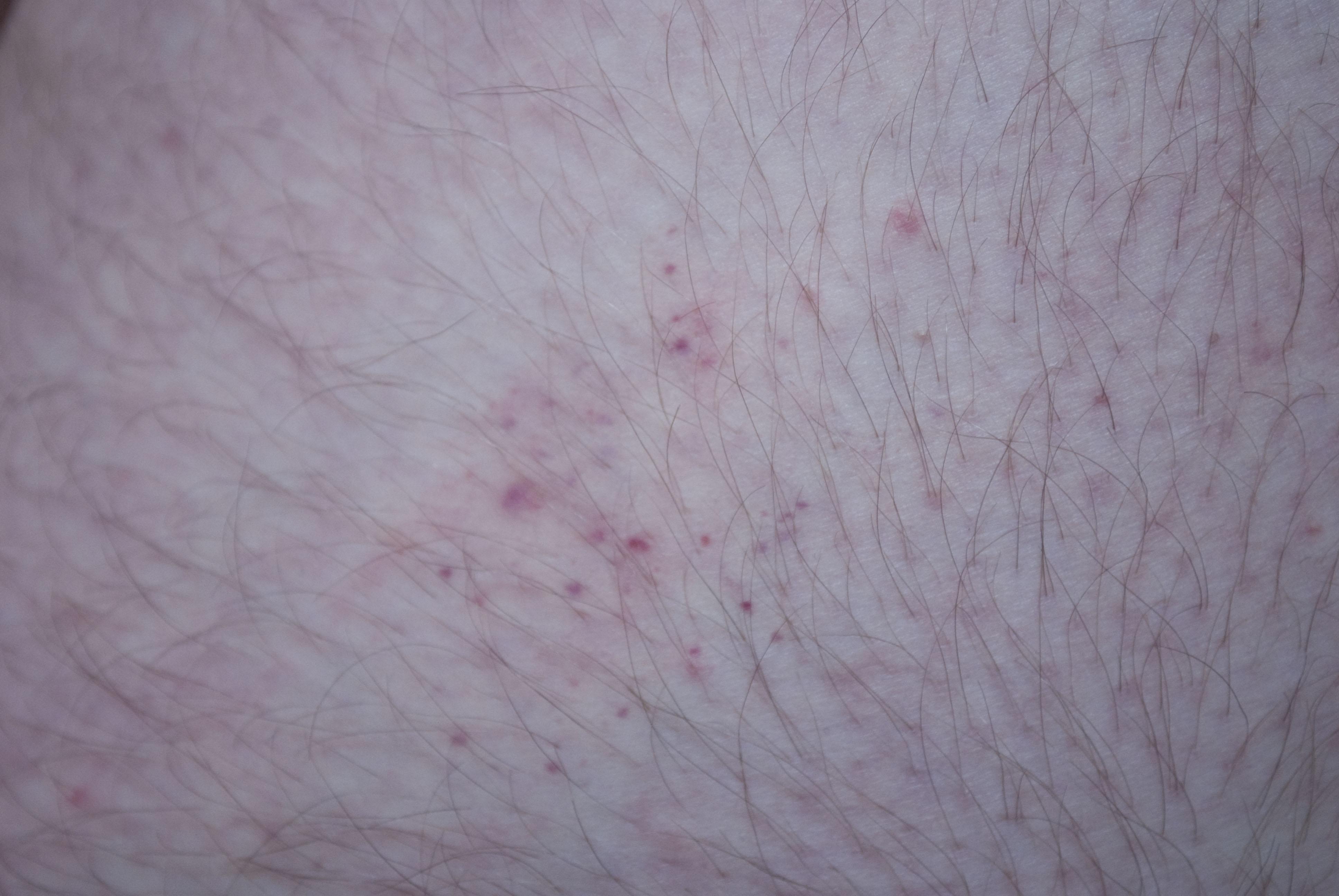 Bed Bug Bites Behind Knees