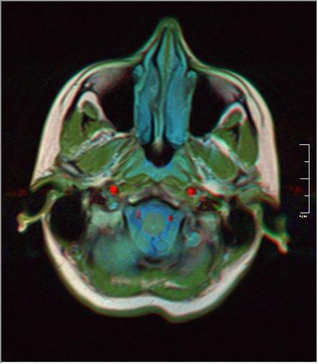 Brain MRI 0035 18 t1 pd t2 41f.jpg