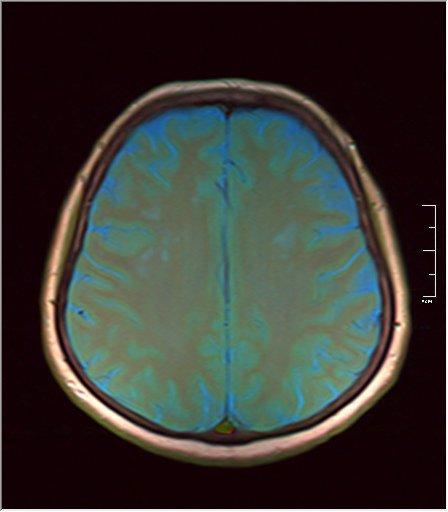 Brain MRI 0106 06.jpg