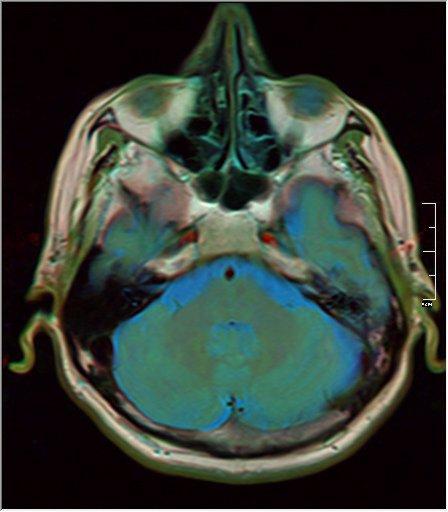 Brain MRI 15 0045 t1 pd t2.jpg