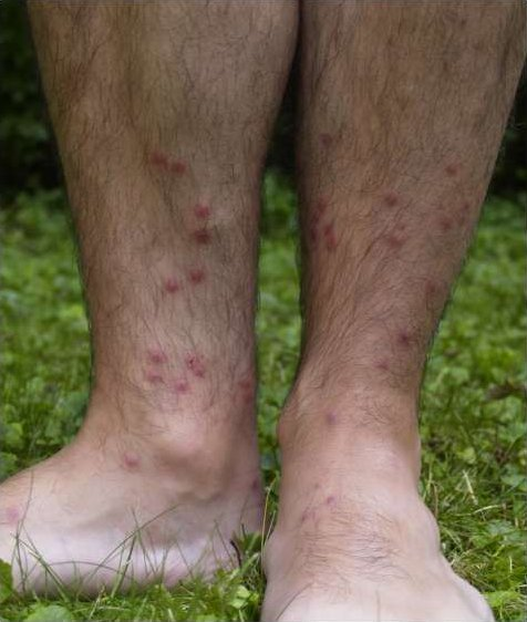 Google images - Rash on legs after swimming in pool ...