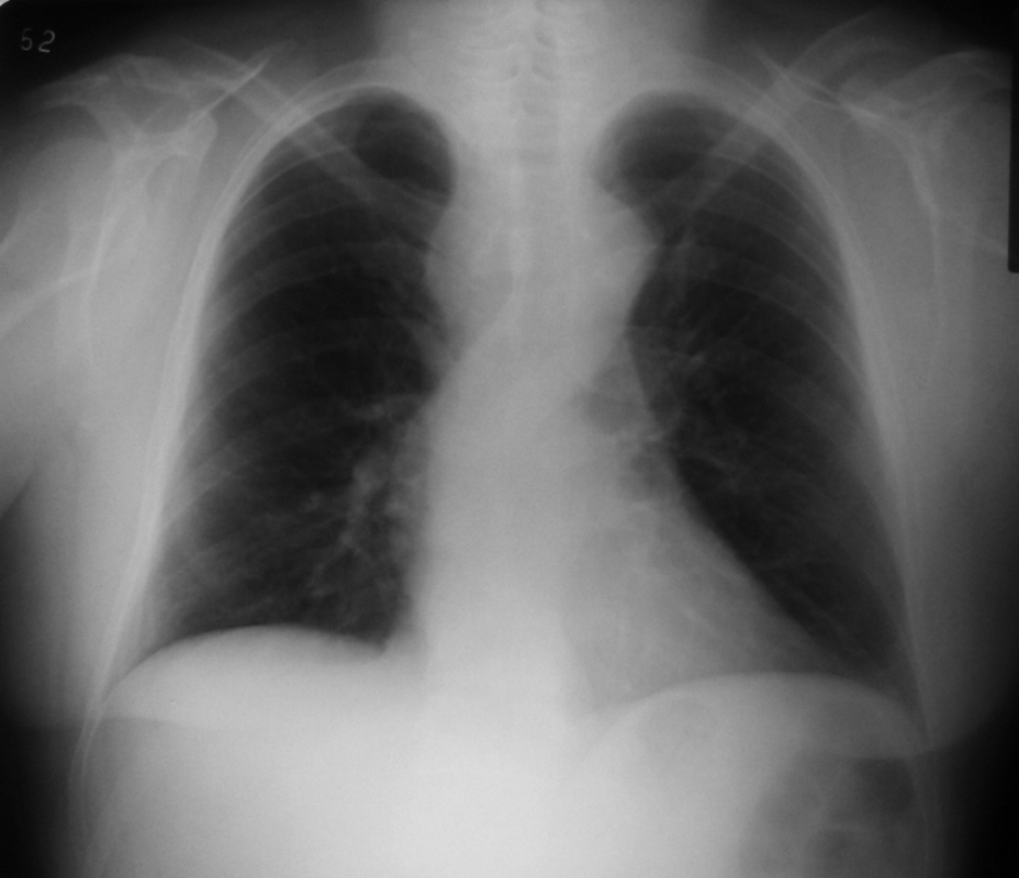 File:Doble arco aortico.JPG - Wikimedia Commons