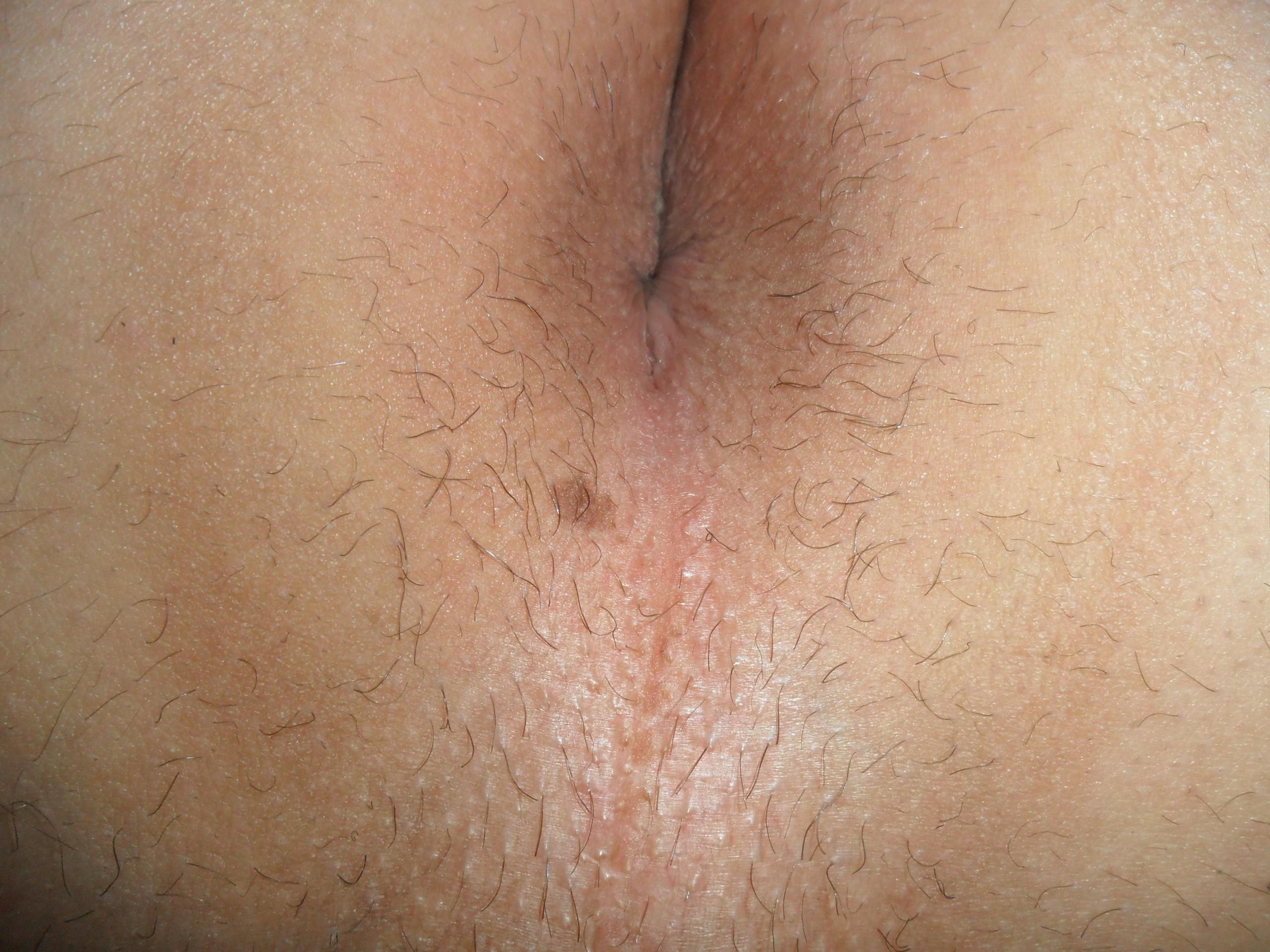 show-persian-trimming-around-anus
