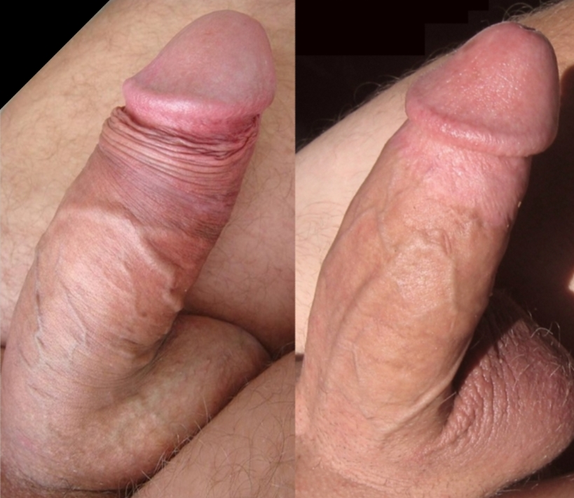 Blisters on penis after sex