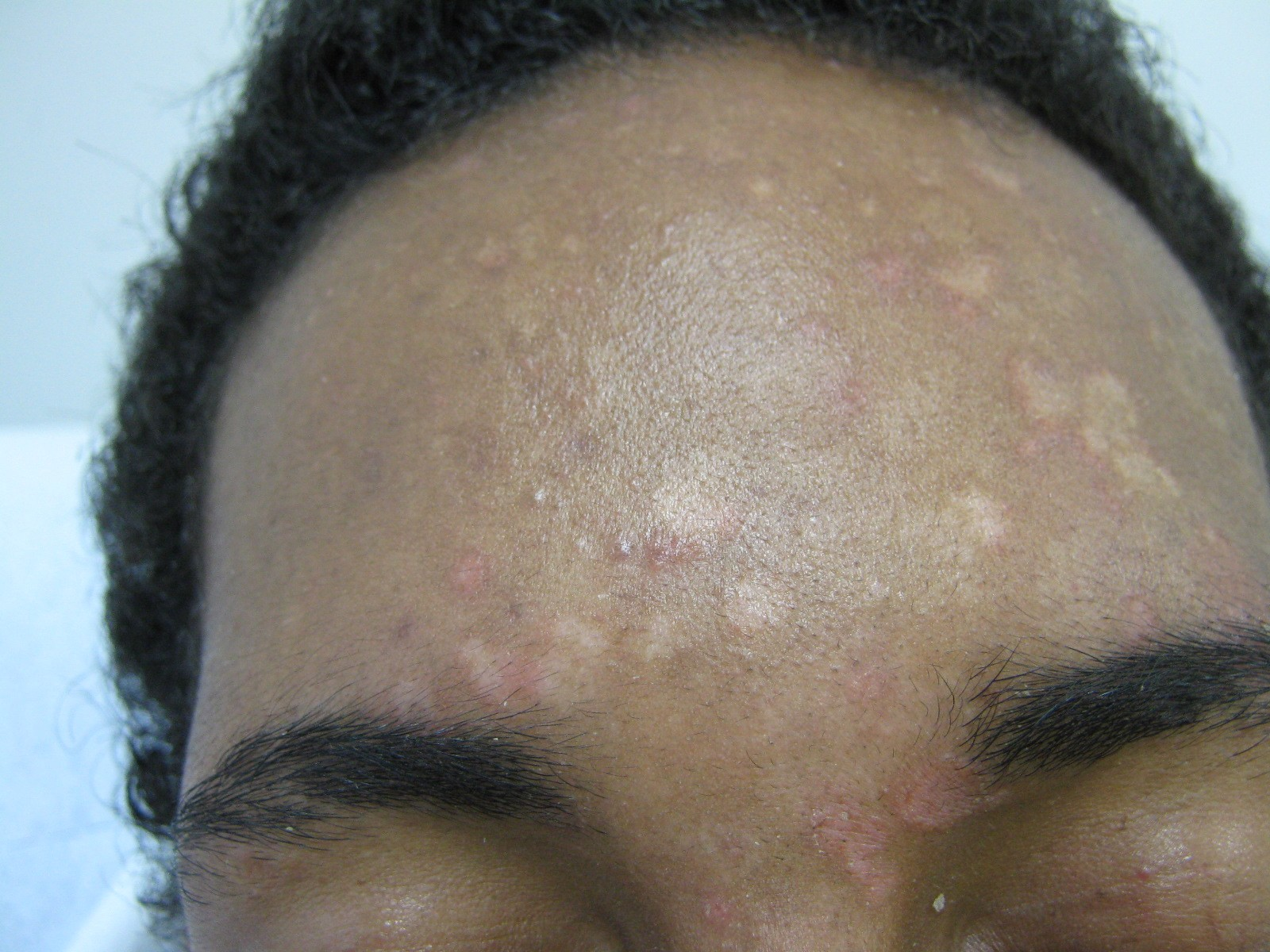 Pityriasis Rosea Pictures, Treatment & Causes - MedicineNet
