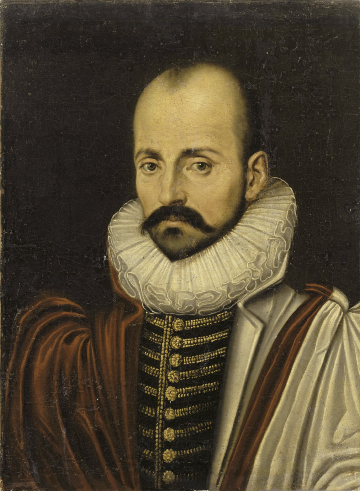 Male-pattern baldness and a big mustache.