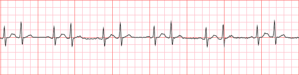 Dogs Heart Rate Under Anaesthesia Australia