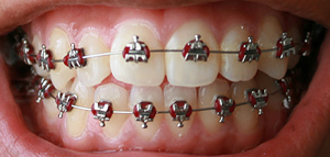 Orthodontic archwire