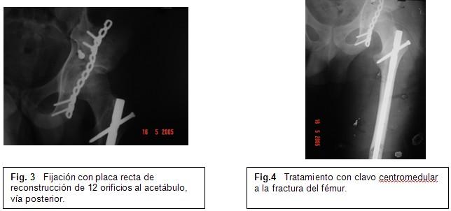 Caderaflotantefig3y4.jpg