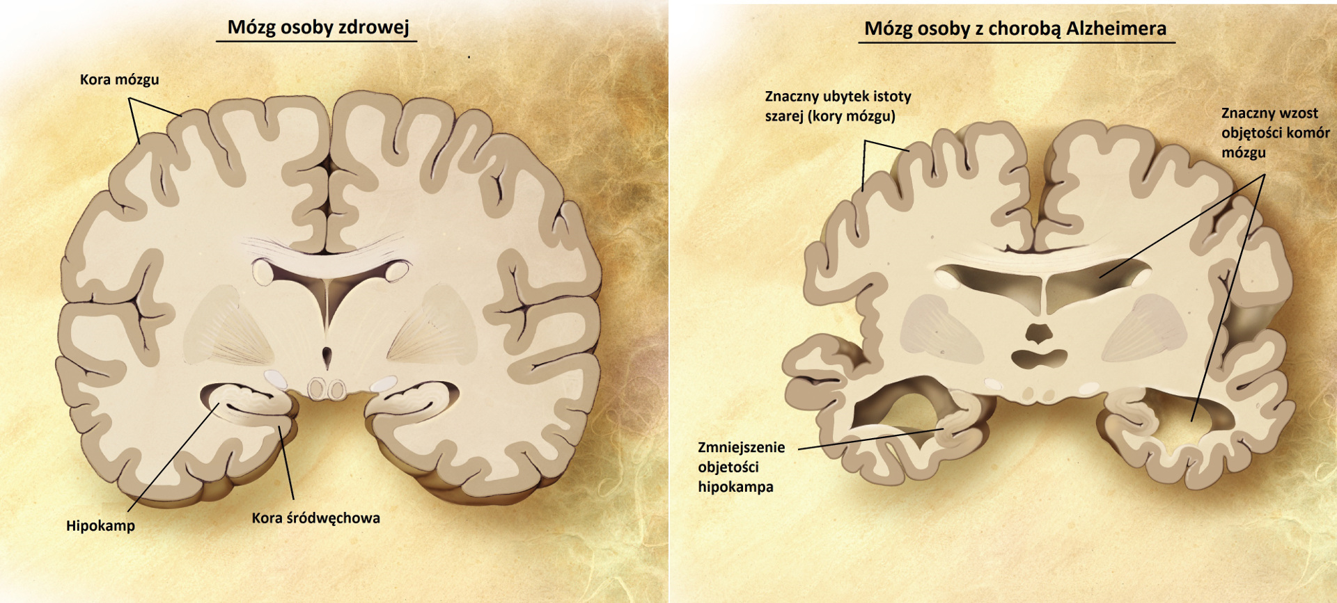 Porównanie mózgu osoby zdrowej i chorej na Alzheimera.