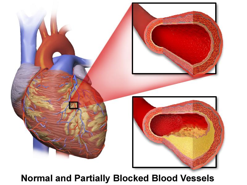 Herzkranzgefäße werden mit dem Herzkatheter untersucht