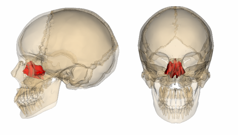 Skeleton Of The Face besides Skull additionally File lacrimal bone   lateral view4 together with Lab18 besides Septoplasty Surgery Photos Ex les. on skull bones inferior view