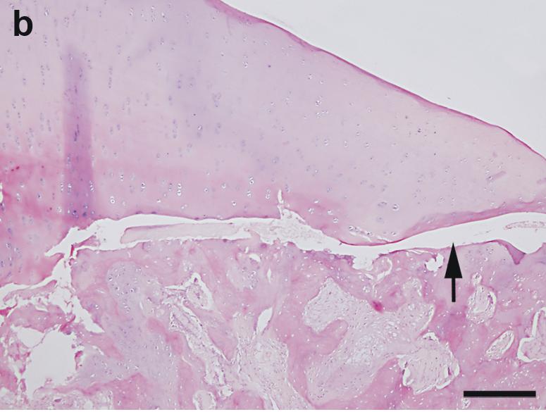 Osteocondrosis - Wikipedia, la enciclopedia libre