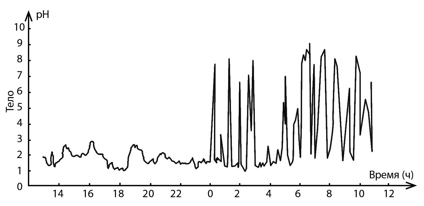 Дистальный рефлюкс эзофагит, Пищевод Wiki