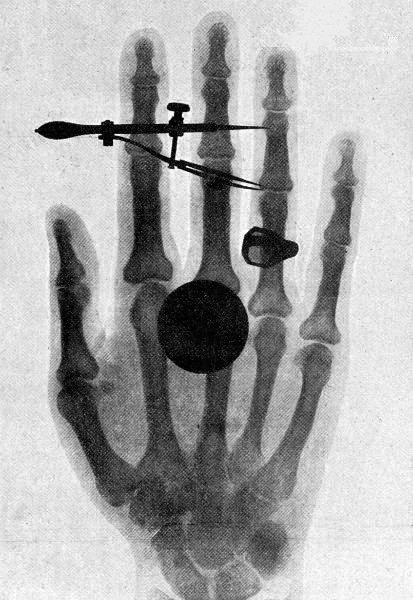 File Wilhelm Roentgen S X Ray Photograph Of His Wife S Hand Png Wikimedia Commons Download for free in png, svg, pdf formats 👆. https commons wikimedia org wiki file wilhelm roentgen 27s x ray photograph of his wife 27s hand png