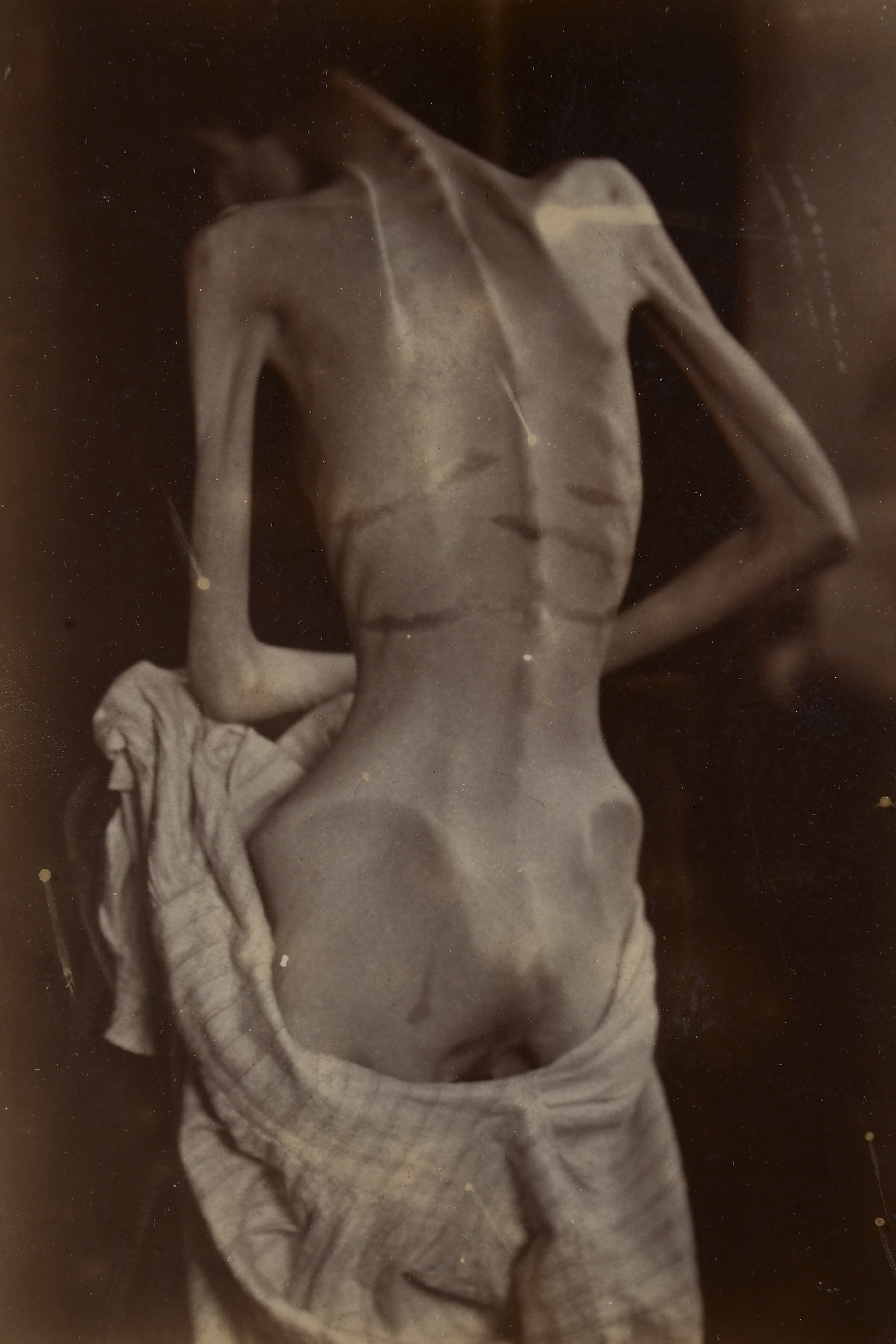 file woman suffering from anorexia nervosa wellcome l0066995 jpg