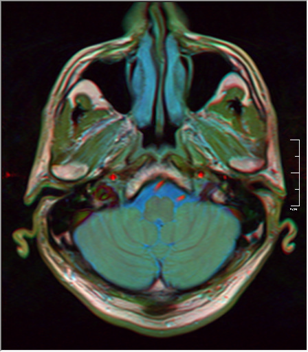 Brain MRI 293 18.png