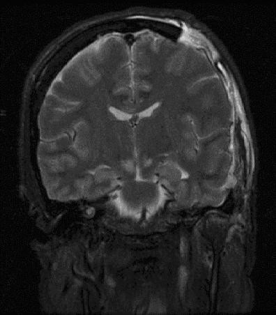 File:Brain herniation MRI.jpg