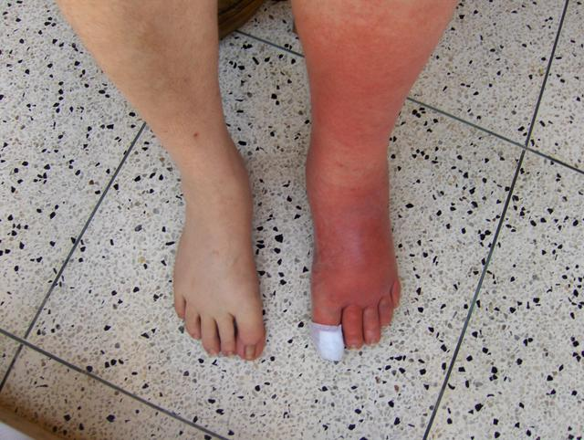 Cellulitis on left leg