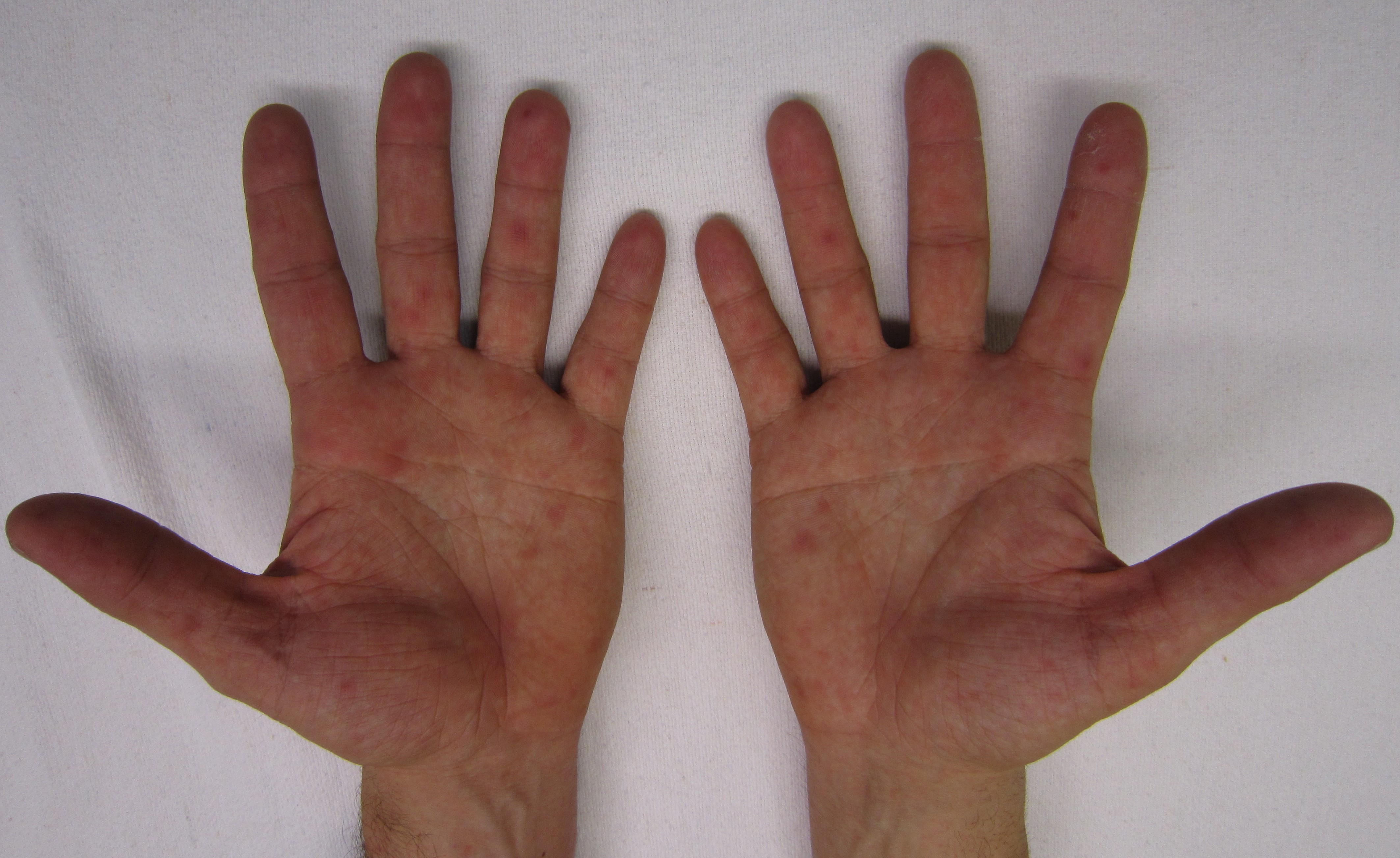 rash on hands and feet in adults