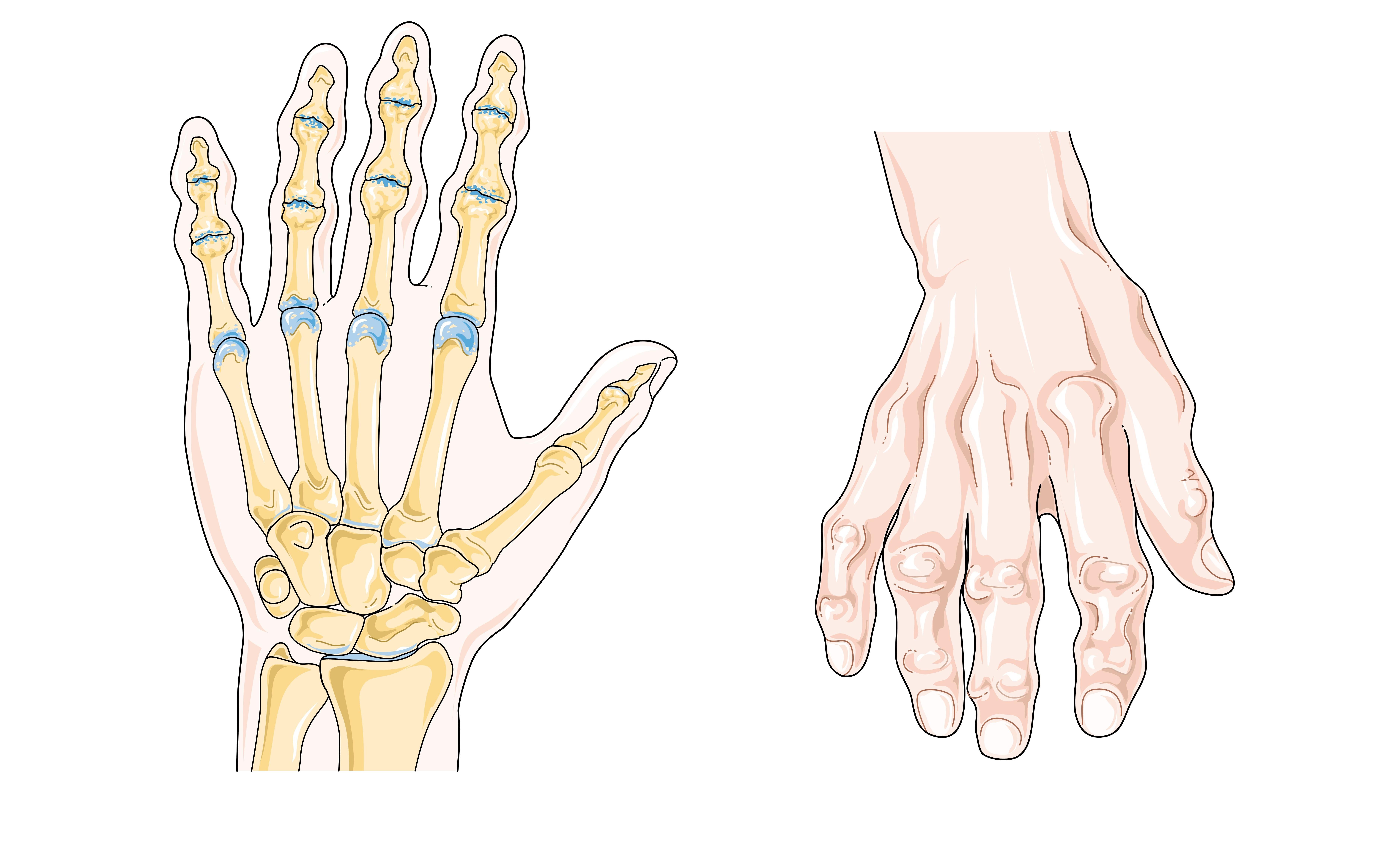 Лечение остеохондроза санаторий пятигорск