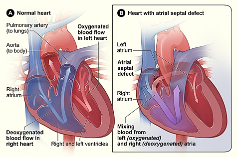 Atrial septal defect with left-to-right shunt