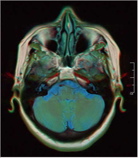 Brain MRI 0153 16.jpg