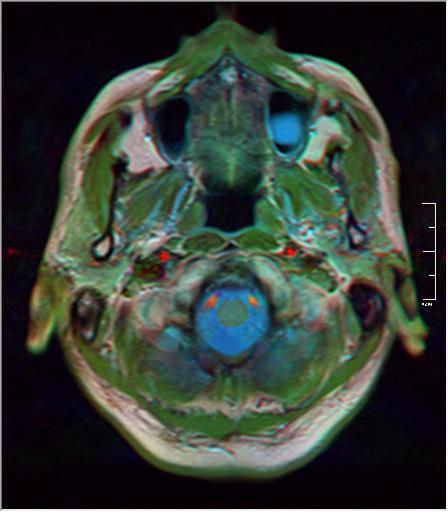Brain MRI 293 20.png